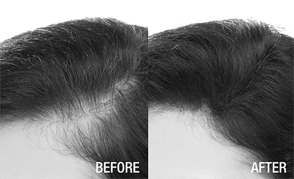 Les signes de la chute des cheveux hormonale